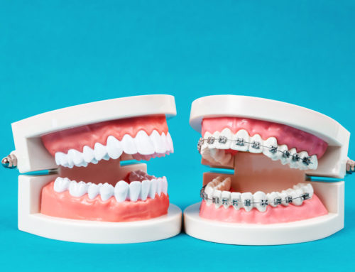 The History of Braces