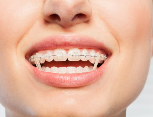 How do Rubber Bands for Braces Work?