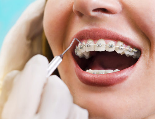 Why Are the Number of Adults Considering Orthodontic Treatment Increasing?