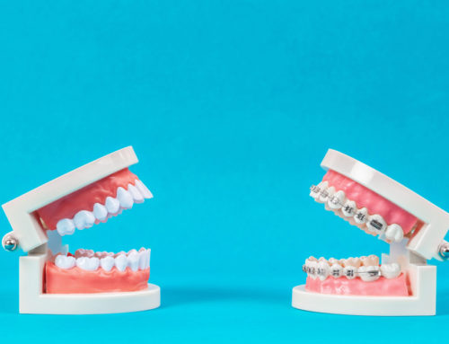 Why Your Health Is Worth the Cost of Braces?