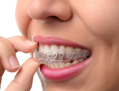 How to Make Invisalign More Comfortable