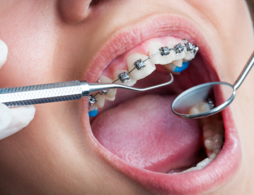How to Maintain a Healthy Diet During Orthodontic Treatment