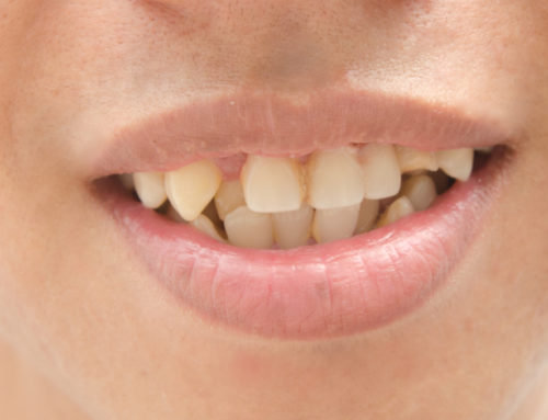 Bite Problems Most Common in Children and Adults