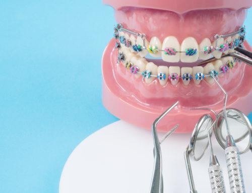 Wisdom Teeth and Braces