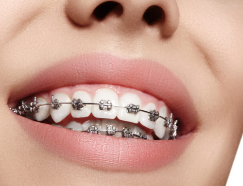 5 Things You Should Not Forget If You're Wearing Braces