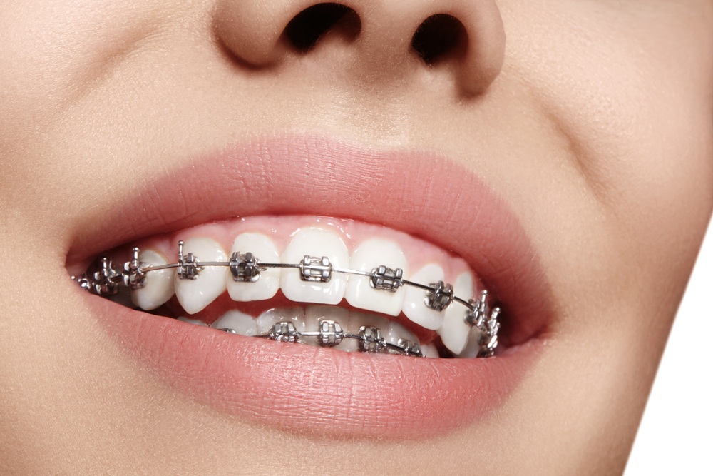 The Main Principles Of How Long Do You Wear Braces